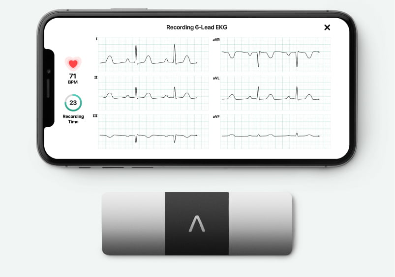 Kardia Mobile 6L paired with an iPhone taking a 6-lead EKG